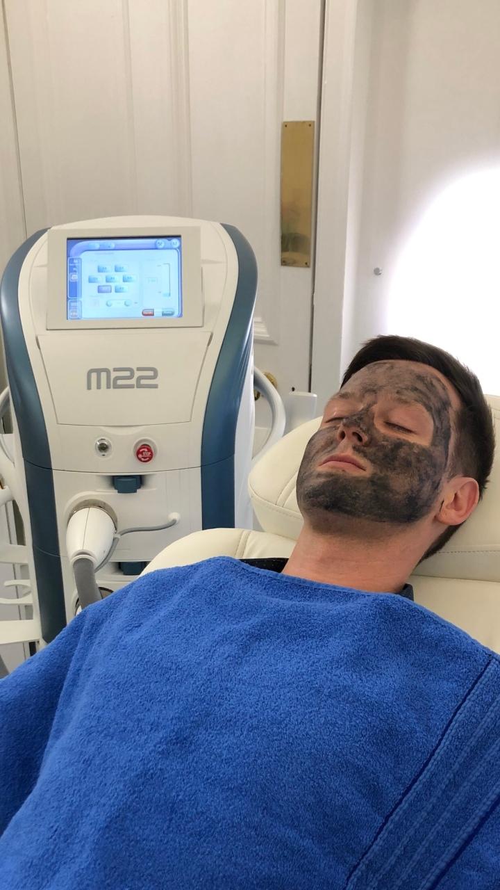 Carbon Laser Peel – Dr Nestor Medical & CosmeticCentre